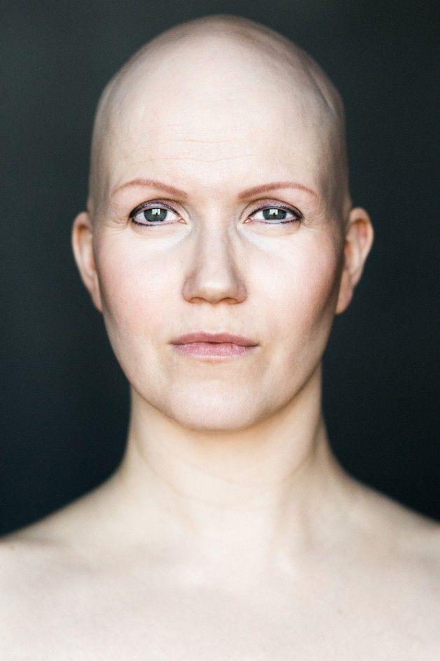 Projeto fotográfico quer redefinir conceito de beleza para mulheres carecas