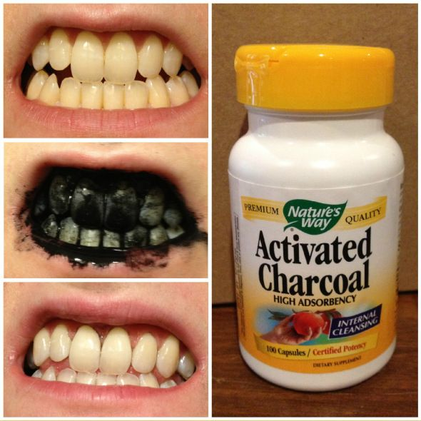 78 Best Images About Beauty Ful On Pinterest Best Teeth