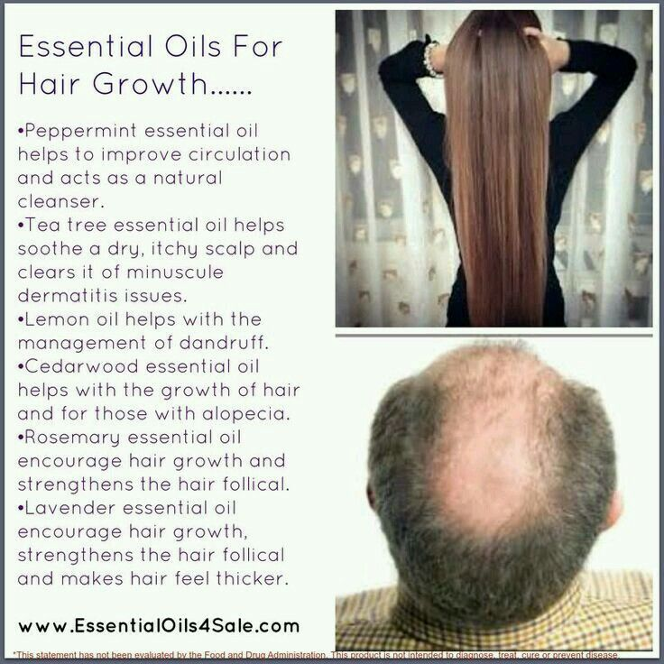 71 best images about Hair & Scalp - Young Living on Pinterest