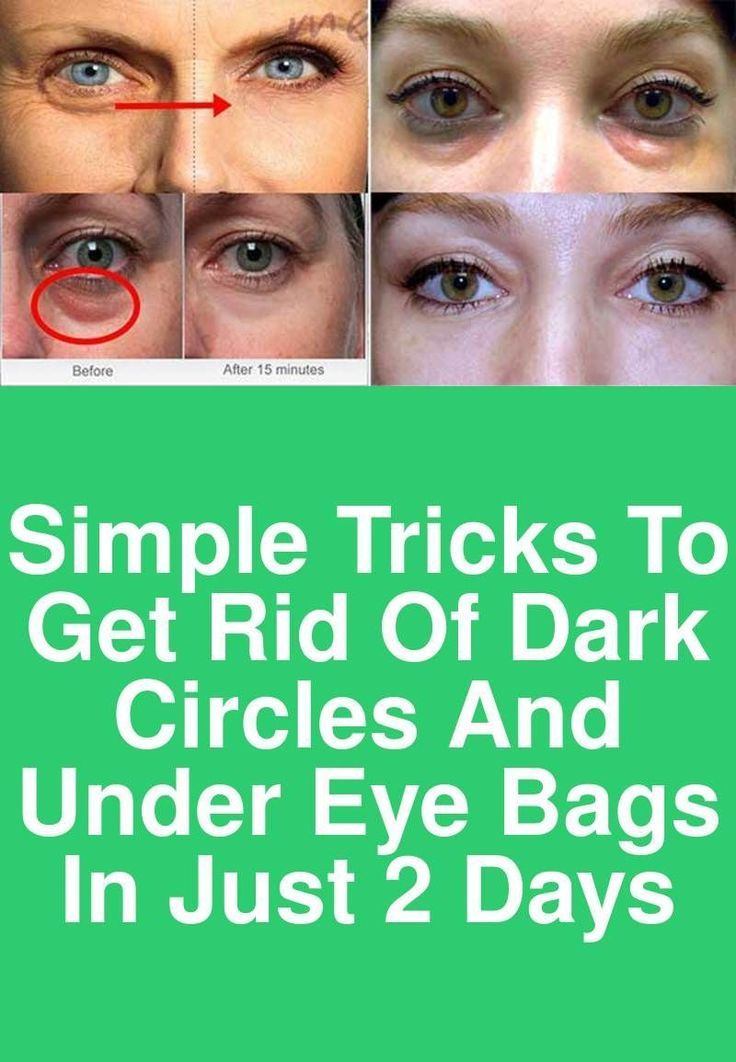 0dda22dd03bea2ff868c81466be45b49 - How To Get Rid Of Dark Circles Under Your Arms