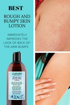 Rough Bumpy Skin Lotion - You Can Finally Treat Those Annoying Back-of-the- Arm Bumps and More.