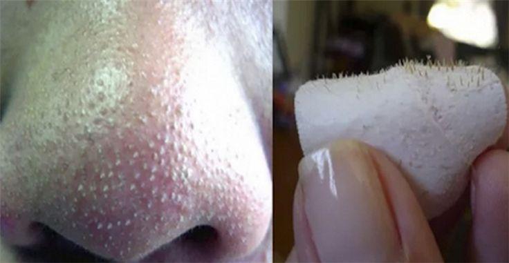 Une astuce incroyablement simple pour éliminer les points noirs sur votre nez !