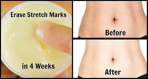 How To Get Rid Of Stretch Marks In One Day