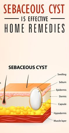 15 Effective Home Remedies To Treat Sebaceous Cyst                                                                                                                                                                                 More