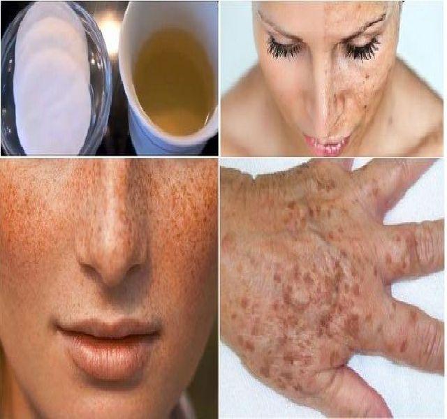 Szinte mindenkinek megjelennek a barna foltok a kor előrehaladtával. Hormonális változások miatt fiatalokon is előfordulhat, főleg terhesség után.