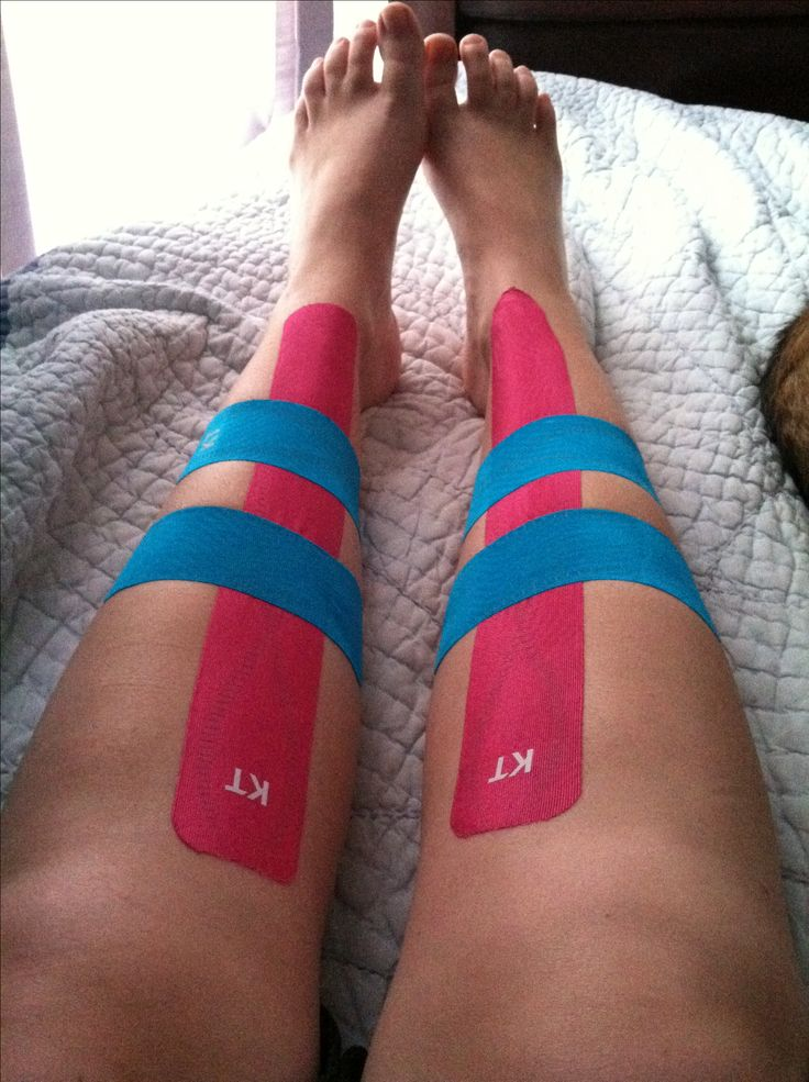 KT tape for shin splints, first along shin second and third above and below pain at 80 percent stretch.