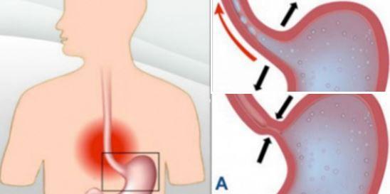 Ce remède naturel vous aidera à traiter les brulures d'estomac et le reflux gastrique