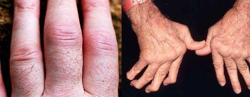 РЕВМАТОИДНЫЙ АРТРИТ.     Ревматоидный артрит (РА) – хроническое системное, соединительнотканное заболевание с преимущественным поражением периферических (синовиальных) суставов по типу деструктивно–эрозивного полиартрита аутоиммунного происхождения. В данном определении следует подчеркнуть две важные составляющие:   Показать полностью…
