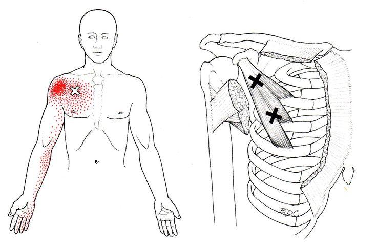 Pectoralis Minimus The Trigger Point Amp Referred Pain