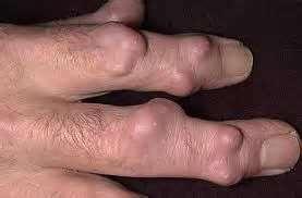 RA can cause rheumatoid nodules on the fingers