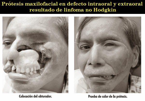 Prótesis maxilofacial en defecto intraoral y extraoral resultado de linfoma no Hodgkin | OVI Dental