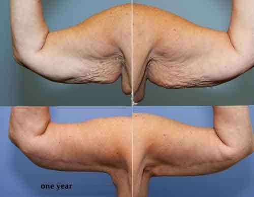 Arm liposuction results 4 – Liposuction before and after