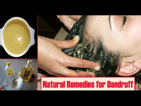 Miracle Home Remedy For Dandruff & Hair Regrowth | Natural Methods to cure Dandruff -  CLICK HERE for The No. 1 Itchy Scalp, Dandruff, Dry Flaky Sore Scalp, Scalp Psoriasis Book! #dandruff #scalp #psoriasis dandruff treatment at home dandruff removal dandruff treatment at home in hindi dandruff flakes in hair dandruff treatment at home in telugudandruff treatment at... - #Dandruff