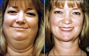 Most men and women who have a second chin or flabby jowls want the opportunity to remove or reduce it without undergoing facelift surgery...