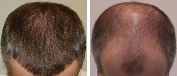 Hair Tonic Penumbuh Rambut Rontok