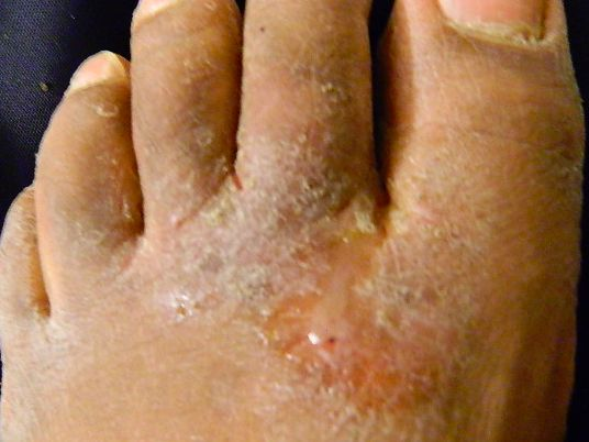 how to get rid of bad foot pain