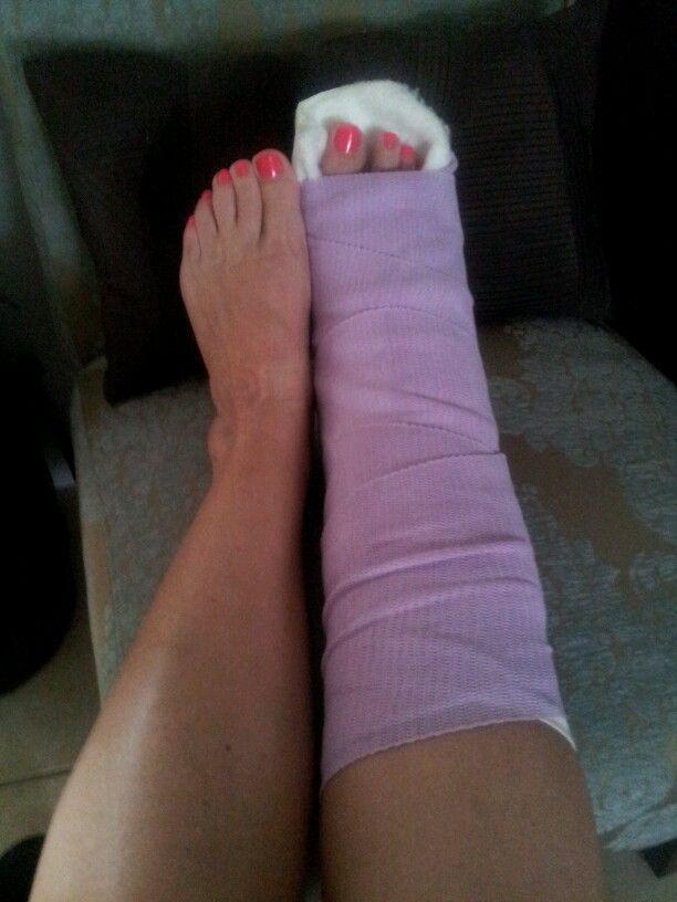 17 Best images about Sprain/Broken Ankle/Broken Foot ...