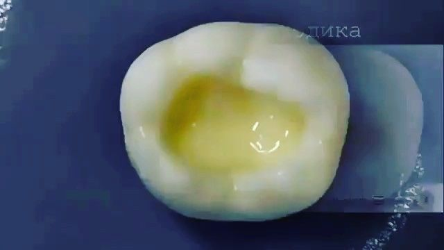 black class I composite filling #teeth#tooth#toothless#extraction#cirugiabucal#oralsurgery#dental#dentist#dentistry#matteonegri#dentalhygiene#dentalassistant#dentalschool#dentalstudent#dentalhygiene#implant#dentist#odonto#odontogram#odontologo#odontolove#odontología#odontologia#odontogram#odontoporamor#estomatología#prosthesis#prosthodontics#ortho#braces#smile#drawing