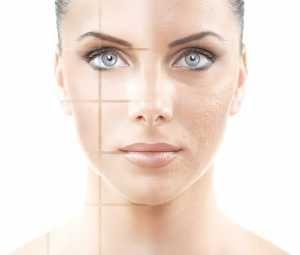 Grote poriën...ook vette huid? http://www.emeral-beautylife.nl/grote-porien-ook-vette-huid/