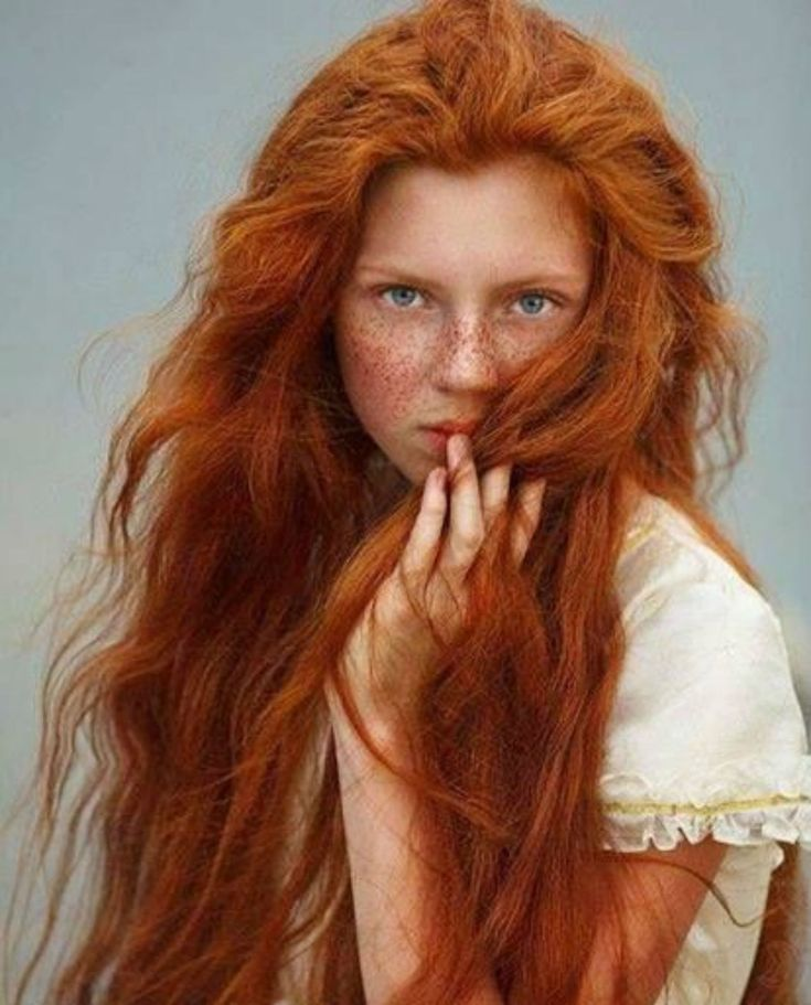 Full head of amazing natural red hair.