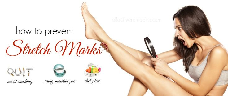 11 Tips how to prevent stretch marks on legs