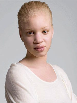 this is a beauty inspiration, not a fashion inspiration. This women is African-American but was born with albinism, making her appear white. She has struggled with her identity her whole life. Hopefully someday she'll be able to realize that she is beautiful. Read her story here: http://www.marieclaire.com/world-reports/news/black-white-skin