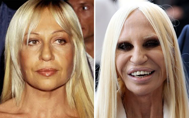 """Donatella Versace may have an eye for fashion, and though has never answered any of the comments regarding her possible plastic surgery gone bad, the first thing one notices about Donatella is her overly plump over lip. In addition, she transformed herself into a human waxwork with implants and laser resurfacing."""
