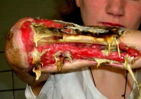 La desomorfina o vulgarmente Krokodil (conocida también como dihidrodesoximorfina o por su antiguo nombre comercial, Permonid) es un análogo de opiáceo inventado en el año 1932 en los Estados Unidos[
