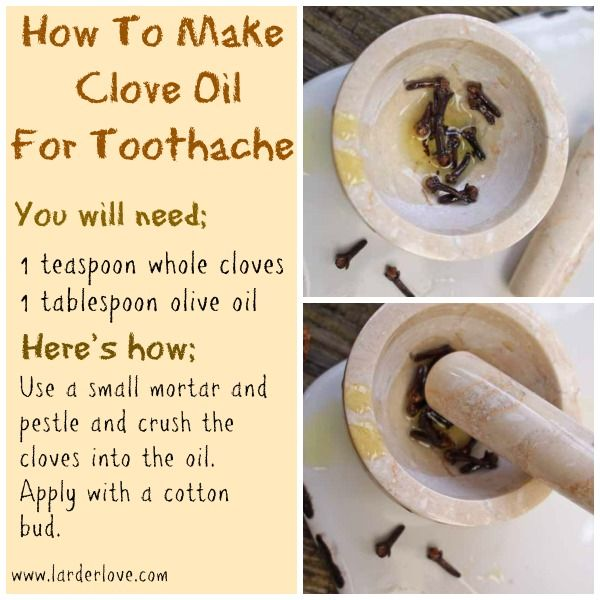 "Homemade Clove Oil for Toothaches : "" Cavities often cause tooth pain, along with fillings that have come loose, a cracked tooth, an abscess (a pocket of infection at the gum line), or a sinus condition. Until you can see the dentist, this Homemade Oil of Cloves recipe / remedy may help provide toothache relief. […]"