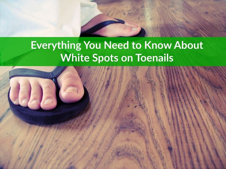 White Spots on Toenails White spots on the toenails are relatively common in both adults and children. In most cases, these spots indicate nothing more than a slight injury to the matrix – the part of the toenail where new nail is produced. However, there are times when a white spot in a toenail indicates something a little more...