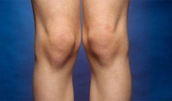 Genuphobia  Fear of knees and/or kneeling