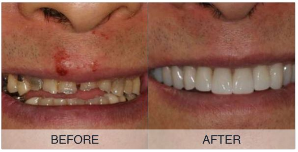 Check out this great case: https://denteez.com/share/wmKlX7 #Dentistry #DentalNetwork #DentalApp #Dental