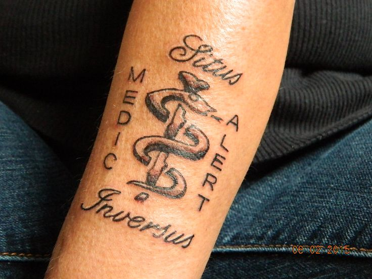 Medical Alert Tattoo - Situs Inversus Maralyn June of Thunder Bay Done Feb.6, 2015, at Ink Alley in Thunder Bay, Ontario