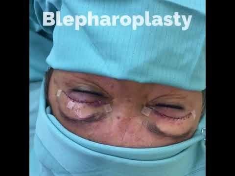 blefaroplastia / Blefaroplasty en Splendhere por Dr. De La Paz