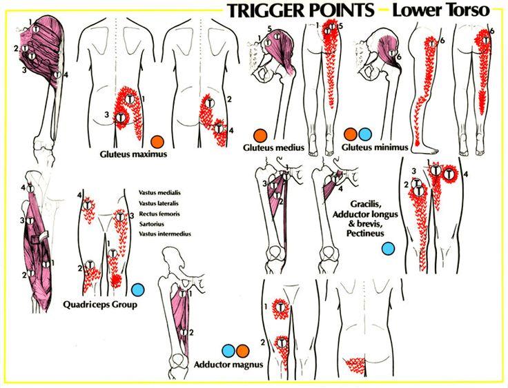 Sciatic Nerve Hip Pain | Sciatica Pain Referral Patterns