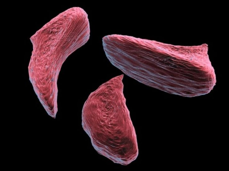 Τι είναι η μικροδρεπανοκυτταρική αναιμία