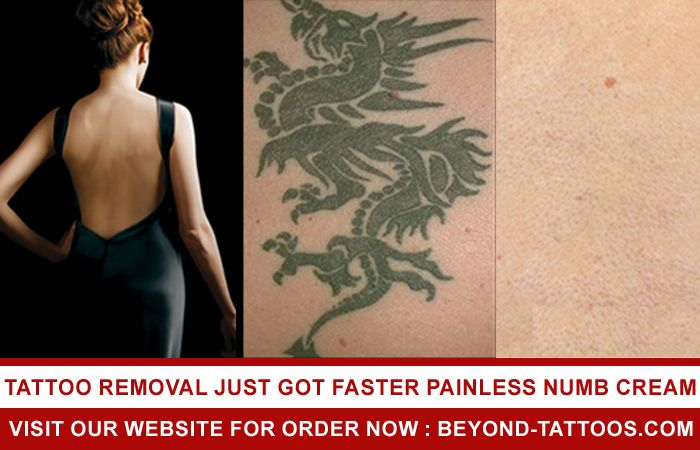 Tattoo Removal If You Are Interested In Getting A Tattoo Removed