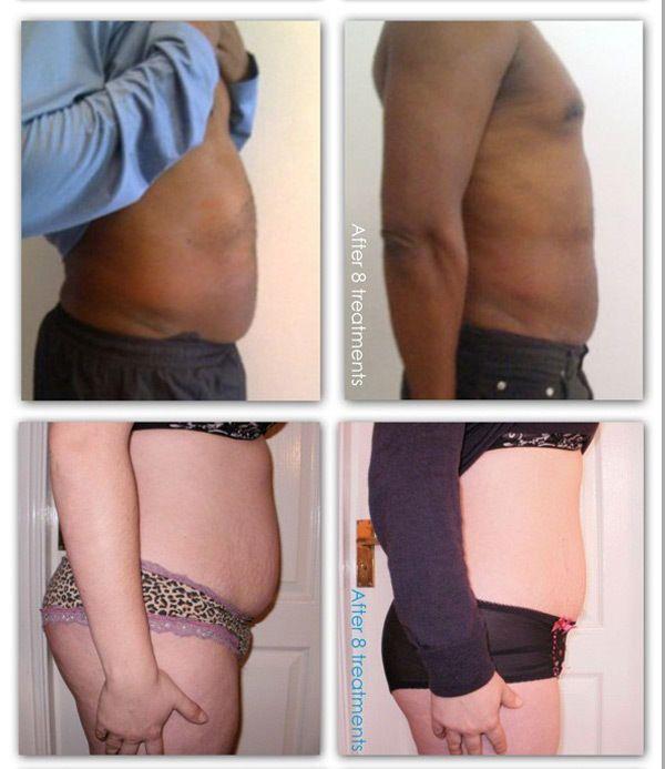 Ultrasonic Cavitation Rf Led Ems Fat Cellulite Removal