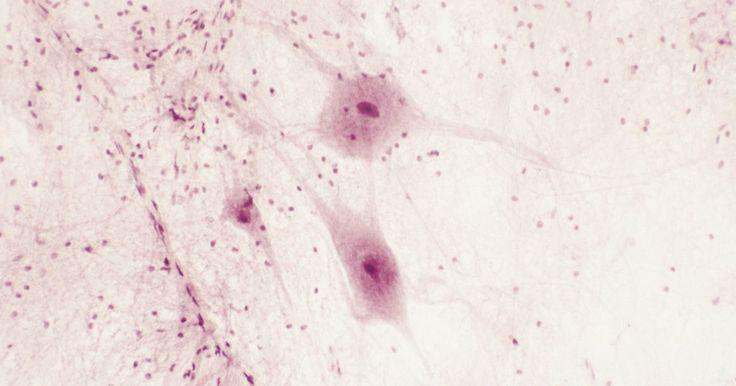 """Como fazer um retículo endoplasmático liso de argila. Faça um retículo endoplasmático liso de argila observando as dobras da organela eucarionte ou de uma parte de uma célula de animal. De acordo com a """"British Society for Cell Biology"""", o trabalho do retículo endoplasmático liso é metabolizar as gorduras e certos hormônios, para que as células funcionem normalmente. Faça artesanalmente a organela ..."""