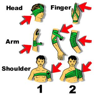 El uso de vendaje de emergencia - La cosa importante a recordar cuando se utiliza un vendaje de emergencia / trauma es mantenerlo apretado por lo que puede ayudar a controlar el sangrado. La ilustración de arriba zapatos algunas maneras diferentes de atar para este propósito. No tiene que ser bonita, ... que tiene que ser eficaz.