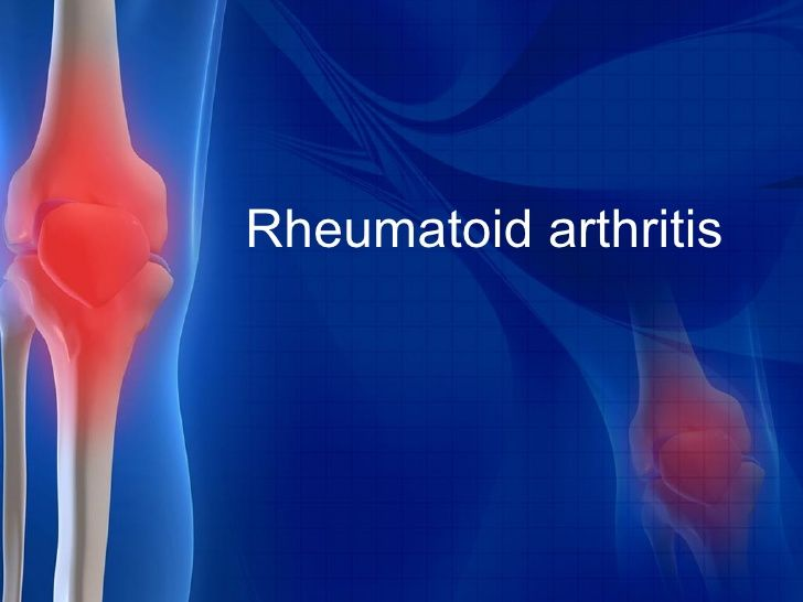 Rheumatoid arthritis (RA) is an autoimmune disorder and it occurs when one's immune system mistakenly attacks his own body's tissues. Causing pains to the joints, rheumatoid arthritis can also at times affect other organs of the body including skin, eyes, lungs and blood vessels.