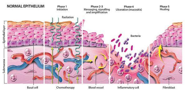 Buscando la fórmula: La formulación magistral en el tratamiento de aftas y mucositis