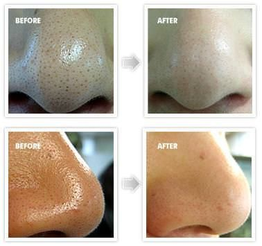 How to Get Rid of Blackheads? Overnight and Fast (Nose/Face)