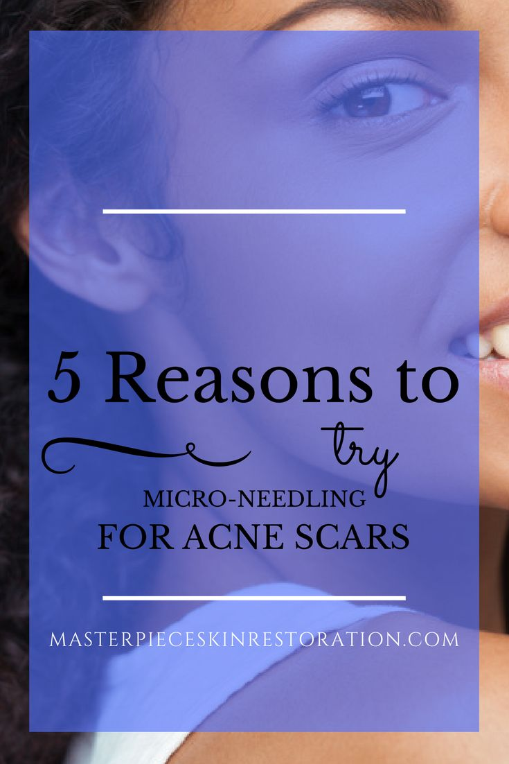 acne scars, micro-needling, scar reduction, depressed acne scars, studies, combining treatments, chemical peels, what to expect, skin rejuvenation, medical beauty, skincare, medical aesthetics, Masterpiece Skin Restoration