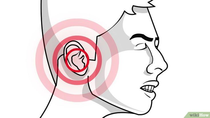 3 Ways to Unplug Ears - wikiHow
