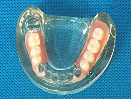 A dental prosthesis can be secured to one or more implants. It can be made of one or many artificial teeth.