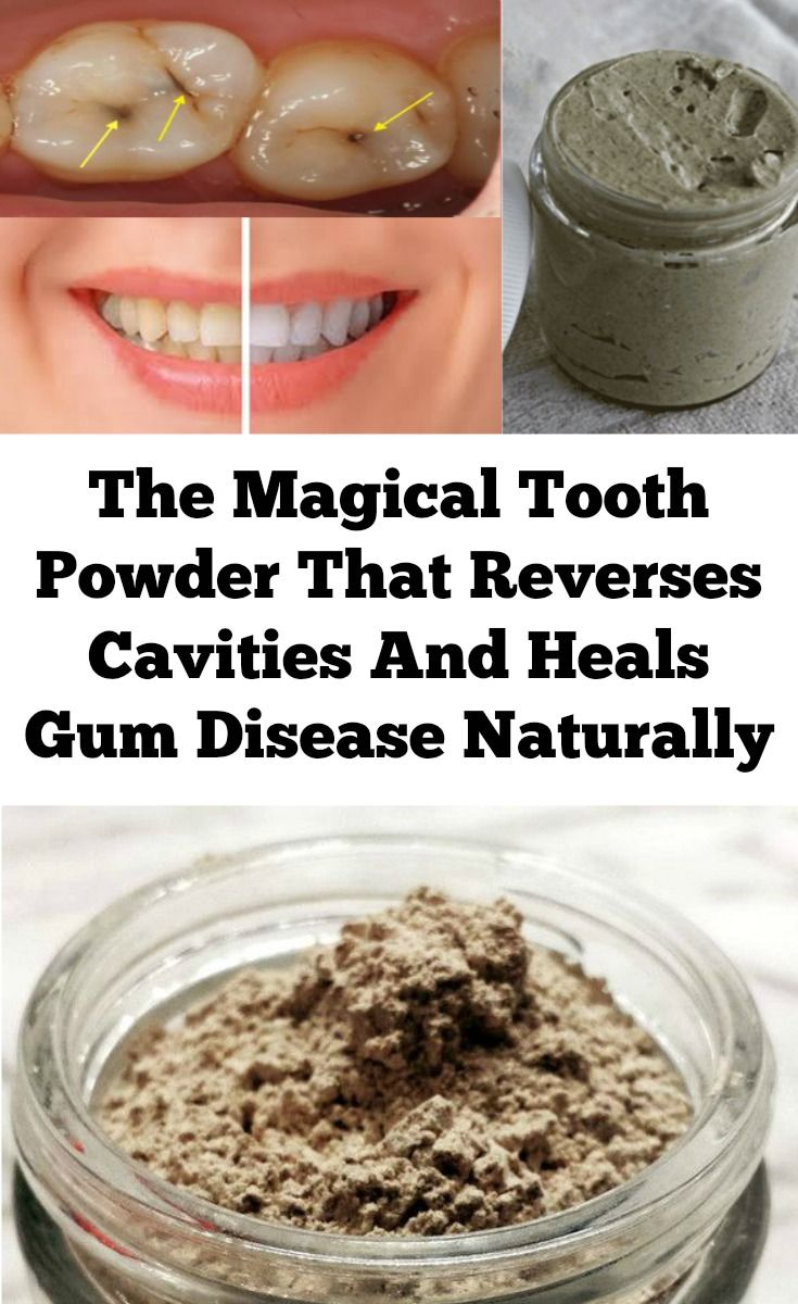 We have all been told that cavities are caused by consuming sugary, sticky candy and the lack of good hygienic care. Once there is a tooth decay, the only solution to the problem is to have a part of your tooth drilled out and filled with synthetic material. However, according to the study published in …