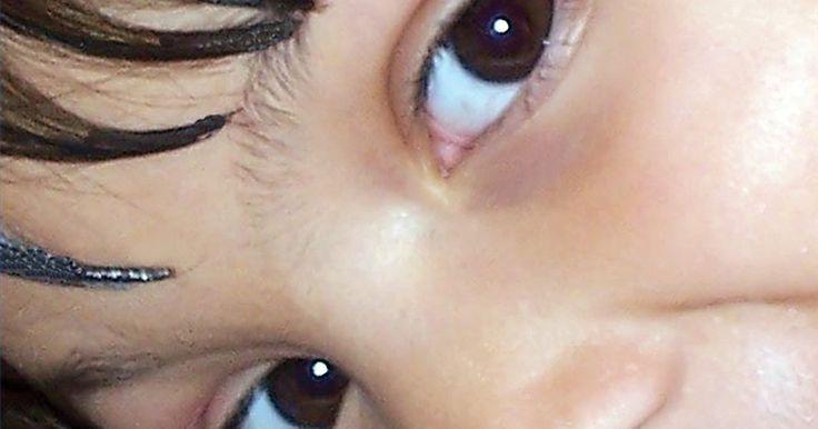 Fatos sobre a cor dos olhos. Qual será a cor dos olhos de um bebê que tem um dos pais com olhos de cor marrom e outro com olhos azuis? Perguntas como essa estão entre as primeiras a entrar na mente dos novos pais, mas a resposta não é tão simples. Tudo vem de um complexo sistema de genes que combinam-se de várias formas para determinar características como a cor de olhos e ...