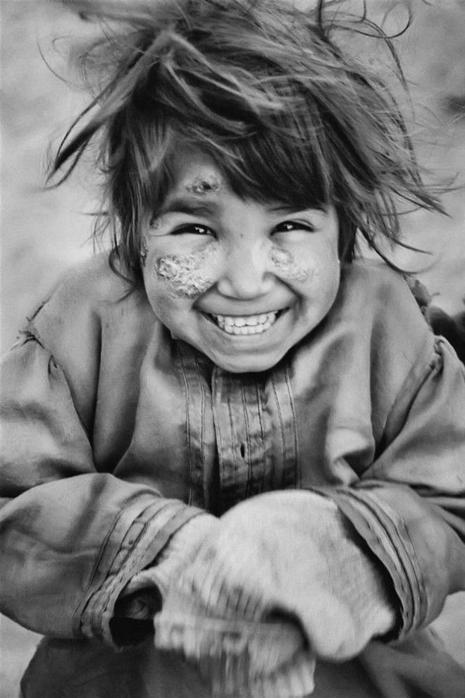 Afghan girl, the scars left after an explosion. North of Kabul. Her smile.