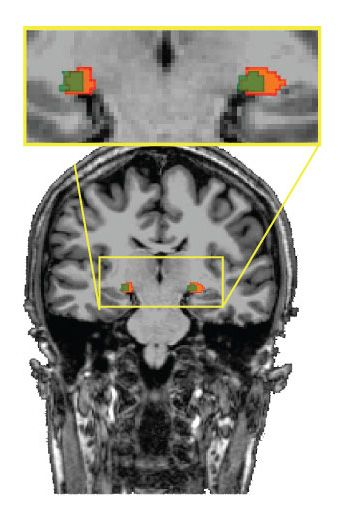 Results challenge conventional wisdom about where the brain begins processing visual information